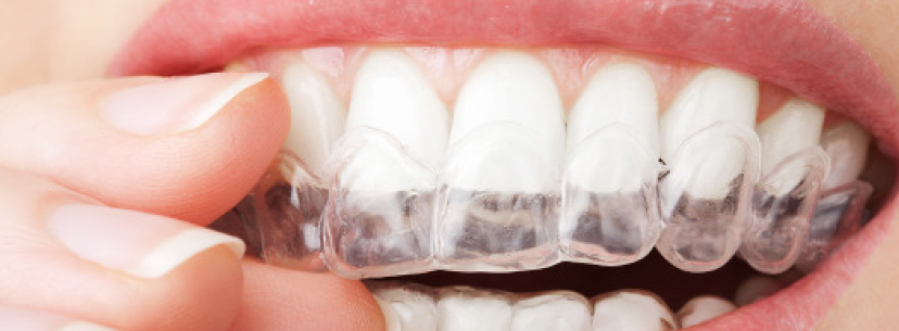 Perfect Smile - Straight teeth