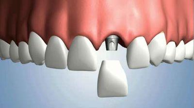 Biological dentistry best implant crown options